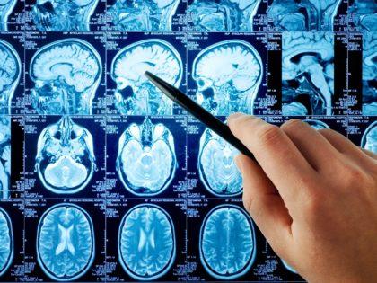 Migraine, Mal de Tête… Comment la Chiropraxie au Centre LEVEL soulage fortement les crises